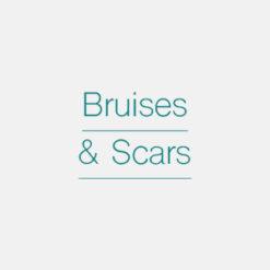 Bruises & Scars